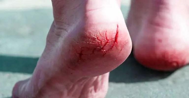 Easy Ways To Define Cracked Heel Causes FI
