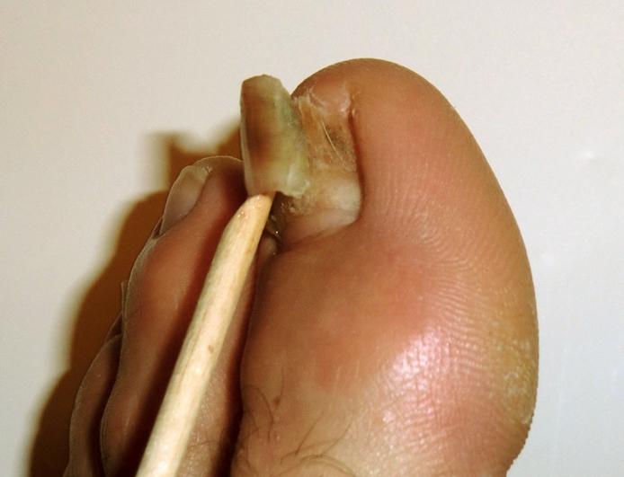 Toenail Falling Off - Symptoms, Causes, Treatment, Remedies