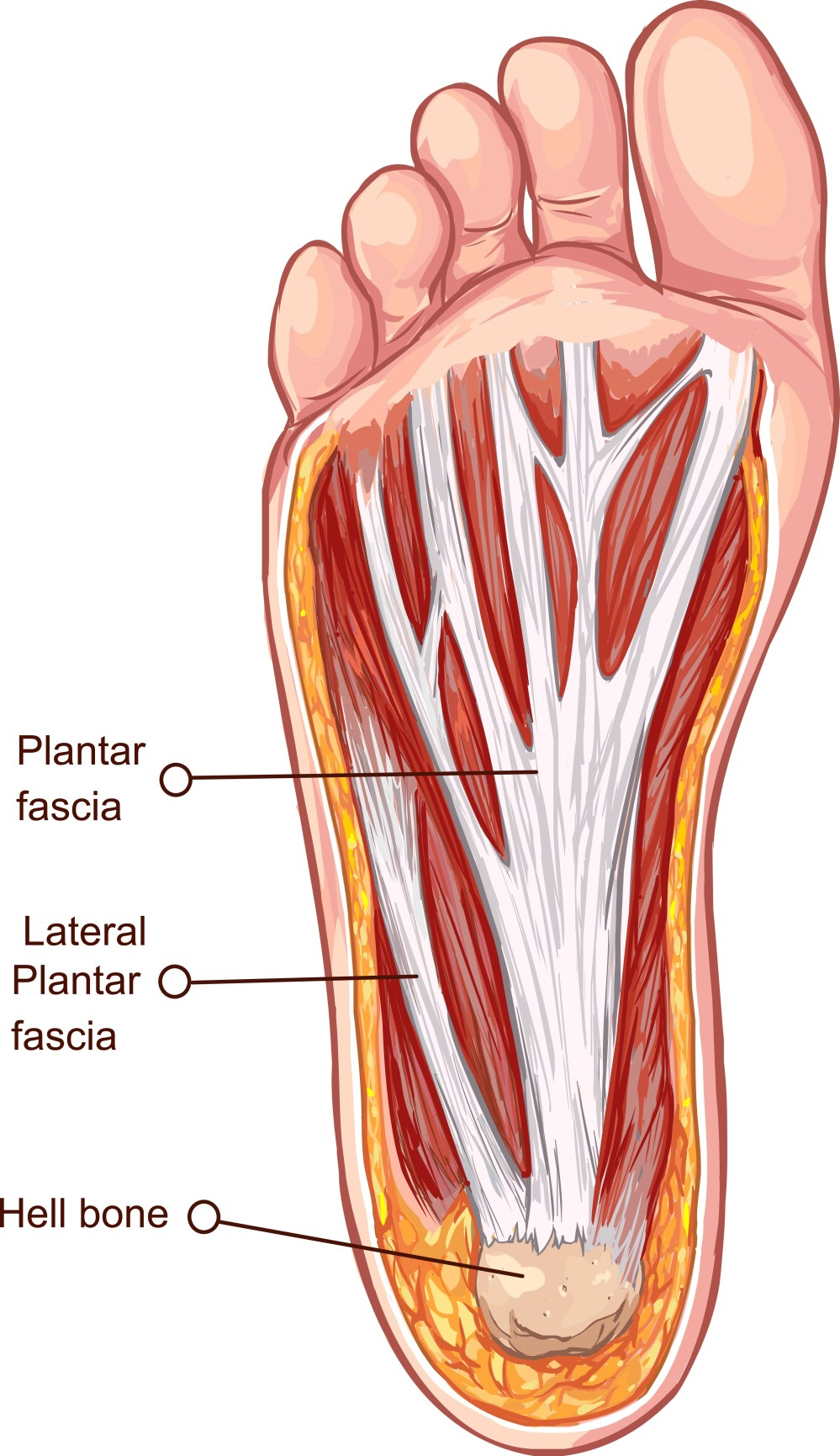 medium resolution of although plantar fasciitis and plantar fascosis inflammation and deterioration of the plantar fascia are known to be the typical diagnosis of plantar heel