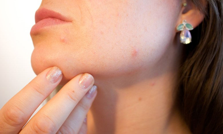 How to Remove Blackheads - 3 Ways to Permanently Get Rid of Them