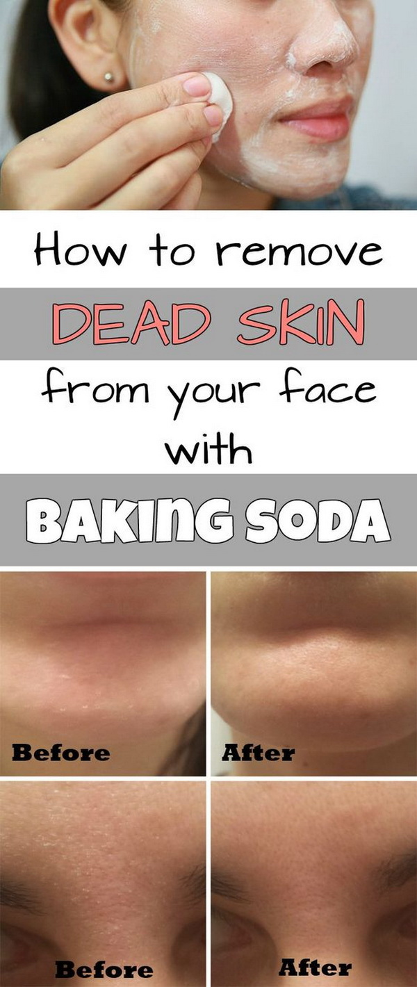 How to Remove Dead Skin from Your Face with Baking Soda.