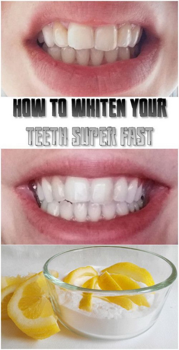 How to whiten your teeth super fast. A homemade remedy to whiten your teeth at home in only 3 minutes. All you need is some lemon juice and one teaspoon of baking soda. Easy, quick and effective!