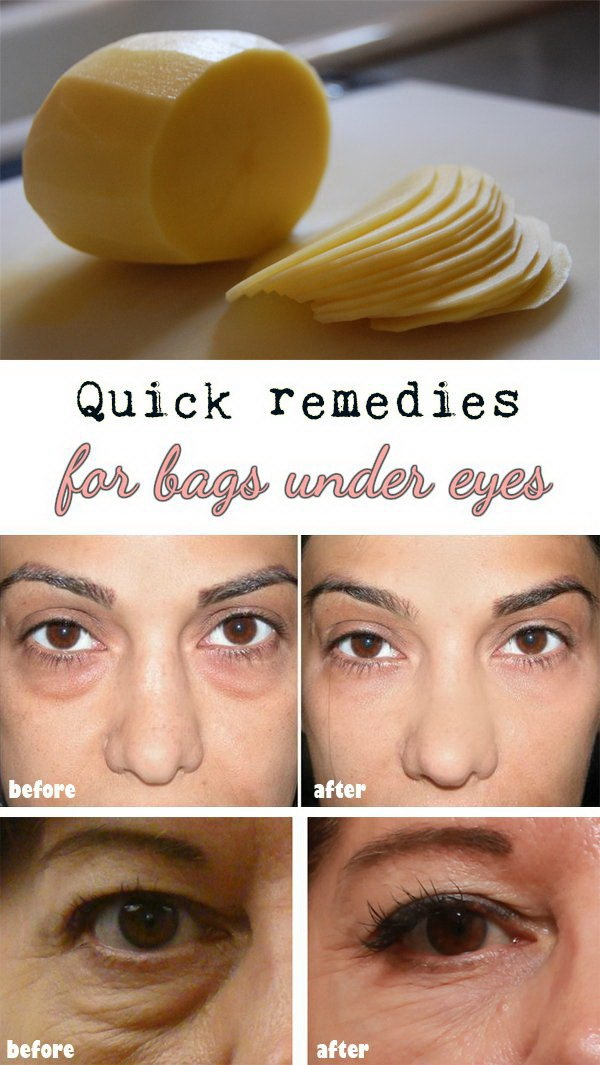 Life-saving Hacks to Get Rid of Dark Circles and Bags Under Your ...