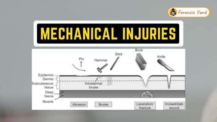 Factors Affecting Mechanical Injuries Forensic Yard