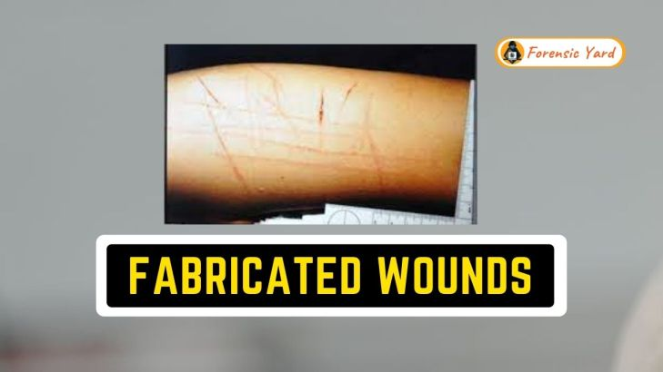 What are Fabricated Wounds? Forensic Yard