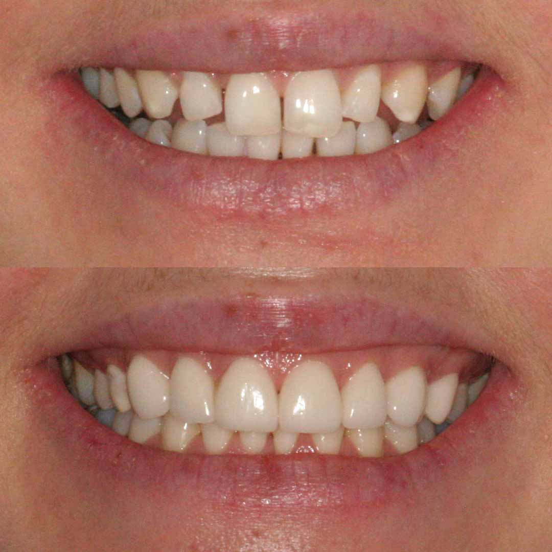 What You Need To Know About Dental Veneers Forever Dental And Skin