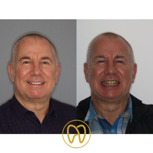 Mark Abbott before and after profile with logo