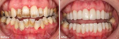 Dental hygienest treatments at Forever Young Lounge, Lee on the Solent.