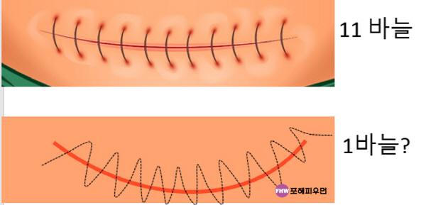 임신준비-제왕절개-american suture