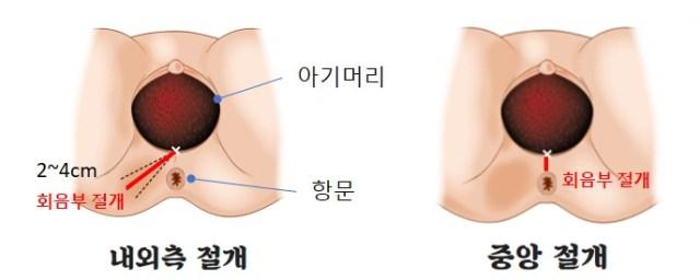 내외측절개 중앙절개.jpg