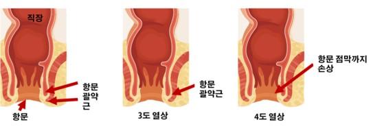 회음부절개-중증회음부열상.jpg