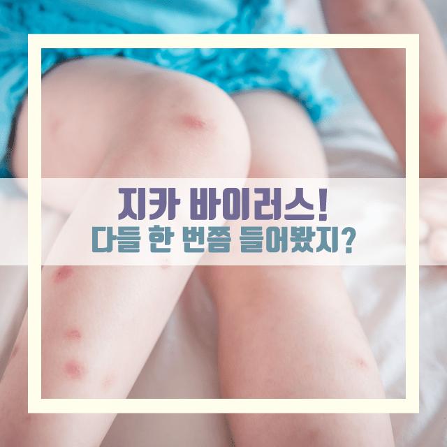 임신준비 여행 휴가 지카바이러스 (6).png