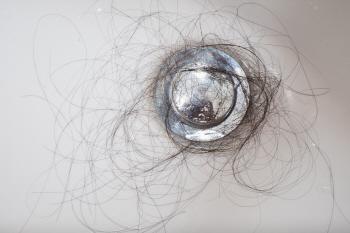 머리카락 탈모.jpg