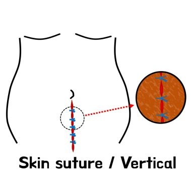 skin suture vertical