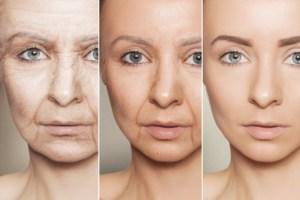 노화 여성 나이 aging