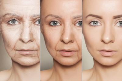 노화 여성