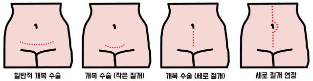 산부인과 복부 절개 방법