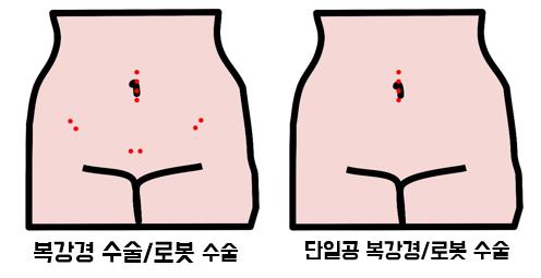 복강경 수술 흉터/ 단일공 복강경 수술