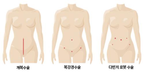 자궁근종 로봇수술 개복과 흉터 비교