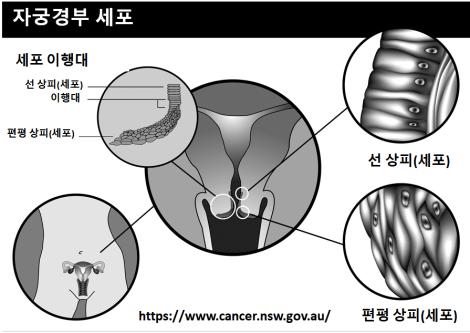 자궁경부 세포 구조