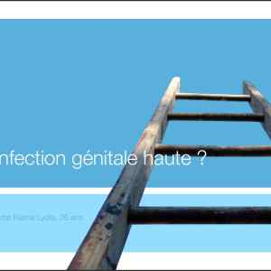 InfectionGénitaleHaute diapo pdf