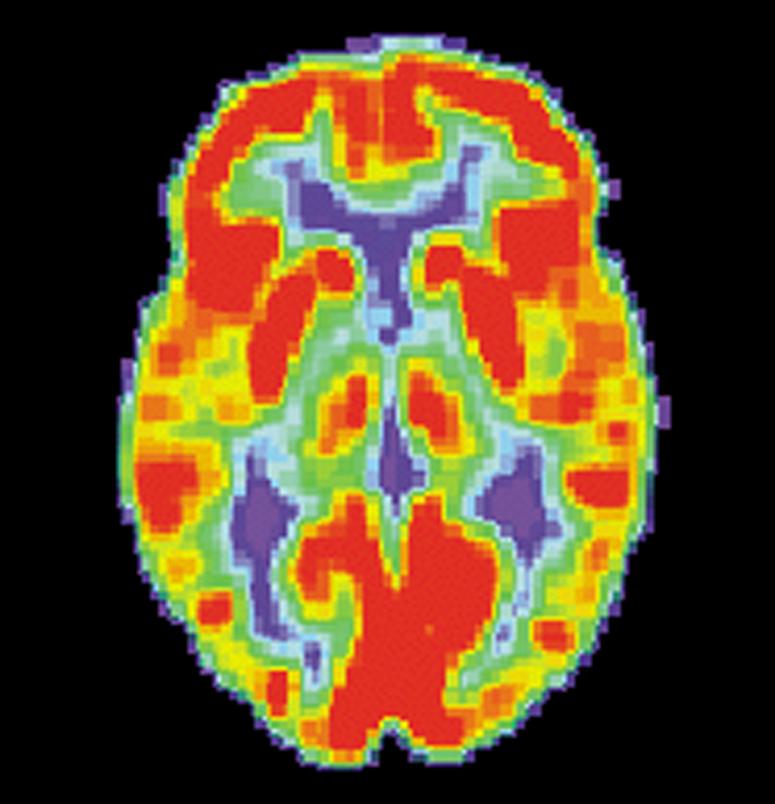 PET Scan d'un cerveau normal montrant les zones actives lorsqu'on raconte une histoire