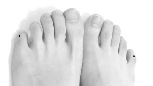 足の小指にあるほくろ2