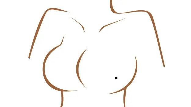 女性の乳房にあるほくろ