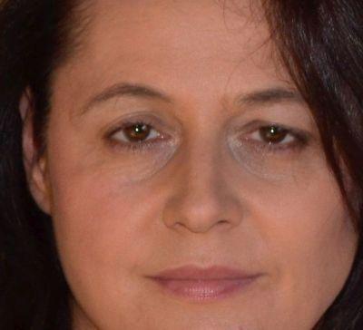 Hängelider durch Botox-Behandlung verbessern