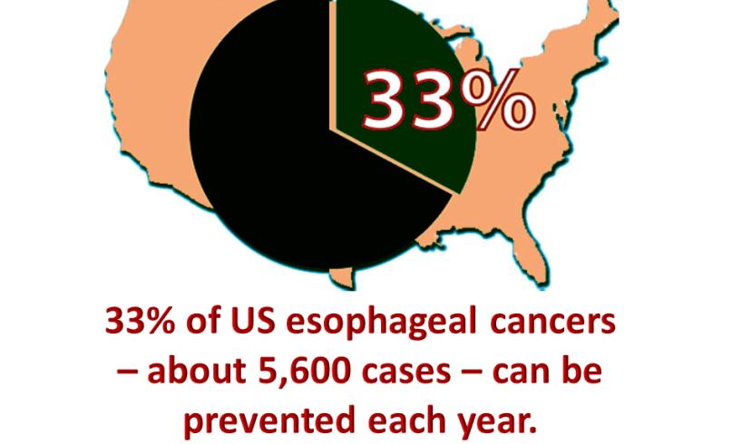 Esophageal Cancer Risk