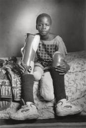 Sofía Alface Fumo, víctima de una mina, Massaca, Mozambique, 1996. Gelatina de plata.