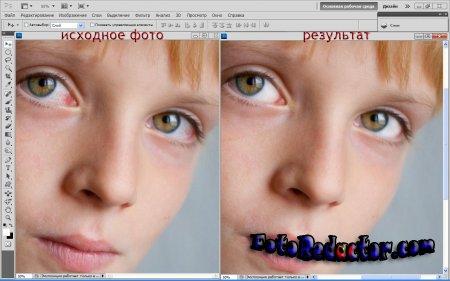 Как отбелить белки глаз на фото