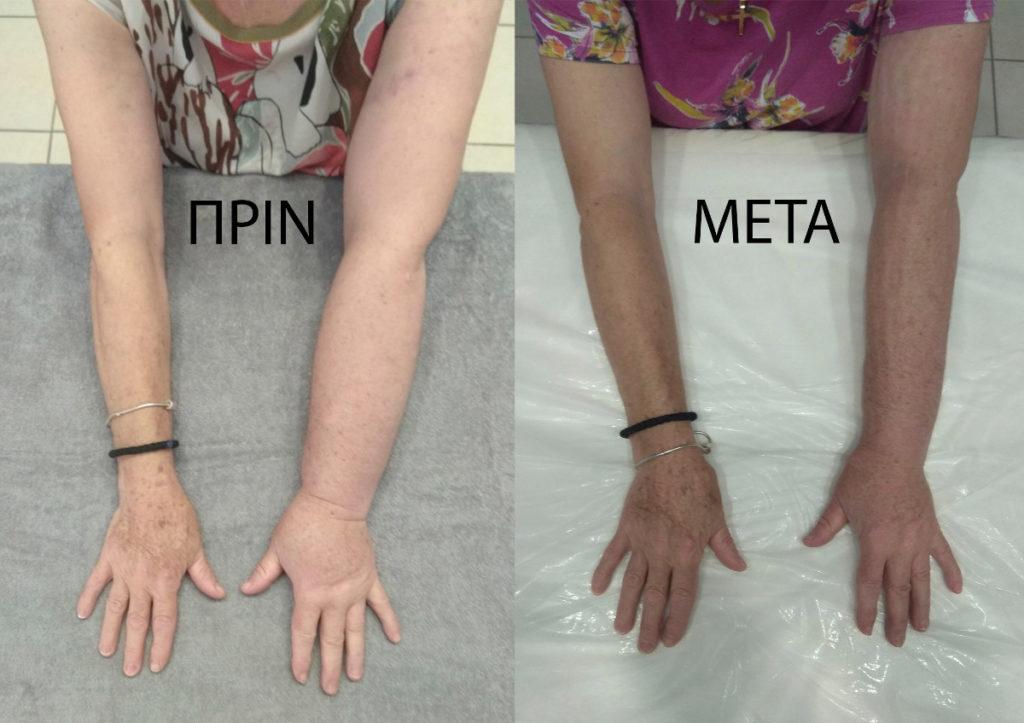 Περίπτωση ασθενούς με λεμφοίδημα, πριν και μετά