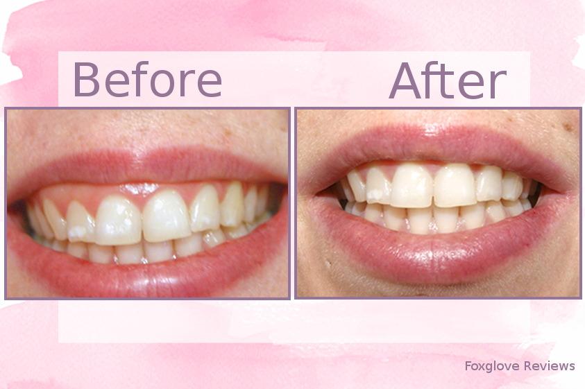 Photo avant et après de mes dents lors de l'utilisation de la poudre de blanchiment des dents au charbon actif Caliwhite