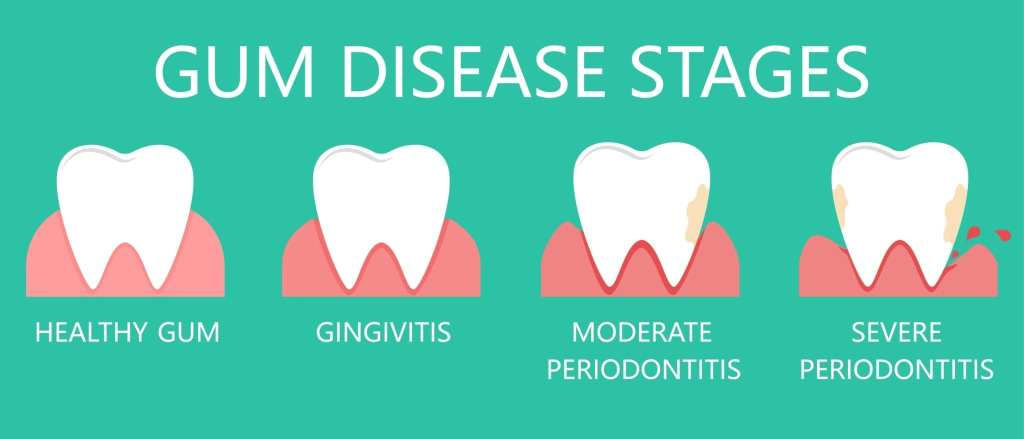 Diagram showing the various stages of gum disease