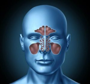 Chronic Sinus Infection Remedy