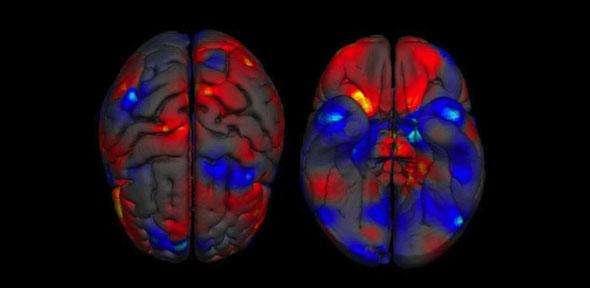 Images du cerveau montrant la différence de volume de la matière grise entre les hommes et les femmes. Les régions où la substance grise est plus volumineuse sont en rouge pour la femme et en bleu pour l'homme. © Neuroscience and Biobehavioral Reviews, cc by nc sa 3.0