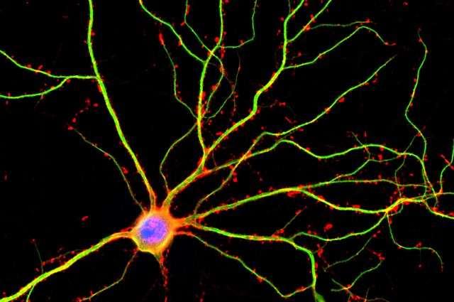 Les dendrites, ici colorées en vert, sont des prolongements cytoplasmiques qui entourent le corps cellulaire des neurones. © Shelley Halpain, UC San Diego