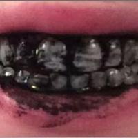 Hygiène : vous brosser les dents avec du dentifrice au charbon végétal est une très mauvaise idée