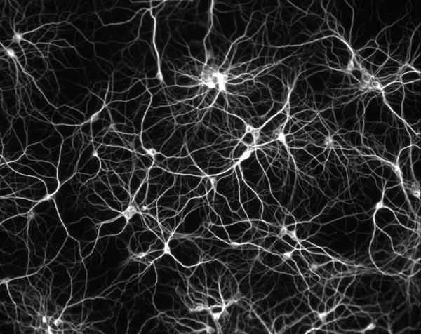 Image result for fractals in cells