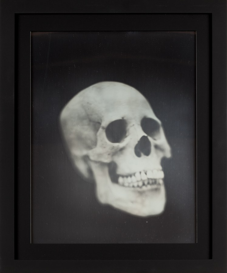 Daguerreotype of a three-quarter view of a human skull