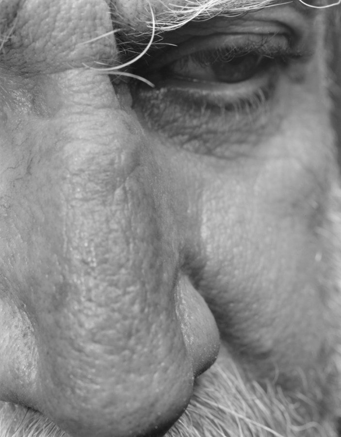Black-and-white close-up photograph of a side-ways cast eye and nose