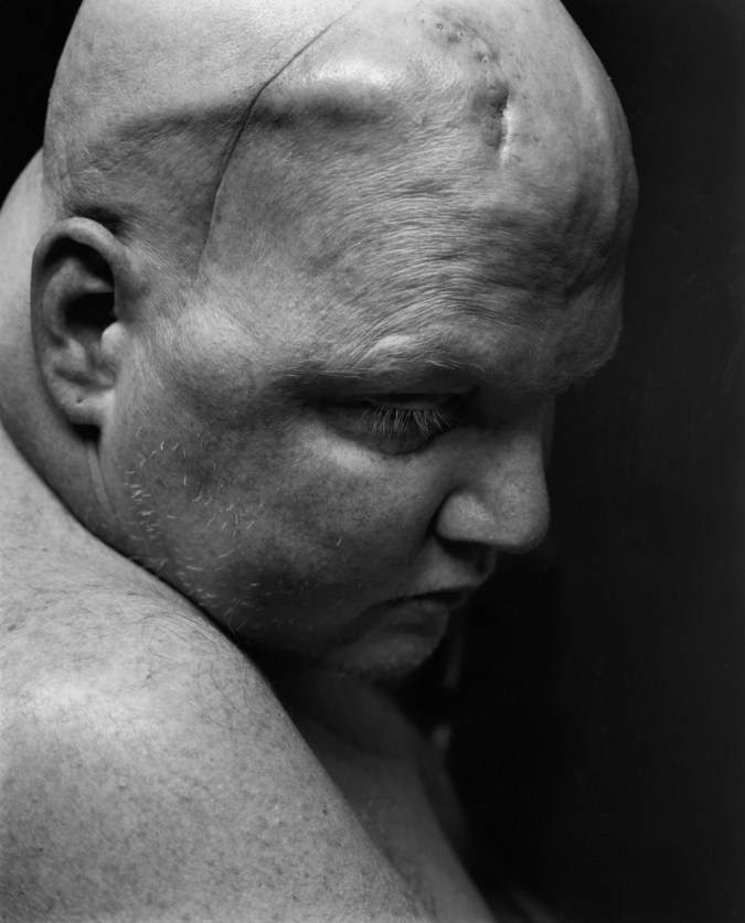 Black-and-white photograph of a man's head and shoulders.