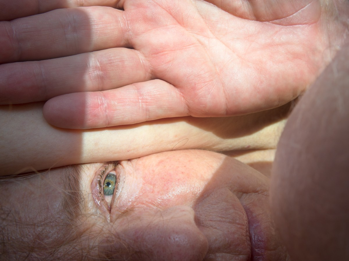 Color photograph of a close up face with a hand resting on top