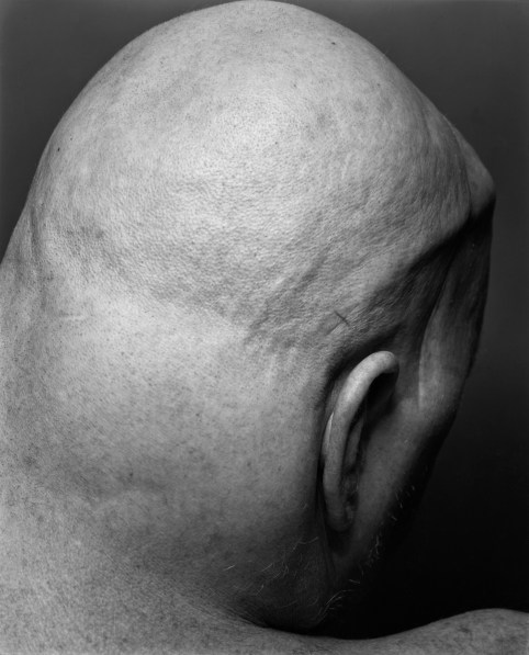 Black-and-white photgraph of the back of a person's bald head