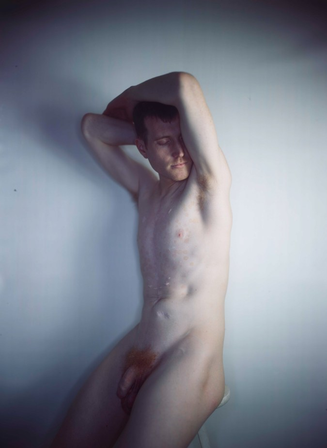 Color photograph of a nude white man with a scarred torso, seated on a stool with arms raised above his head.
