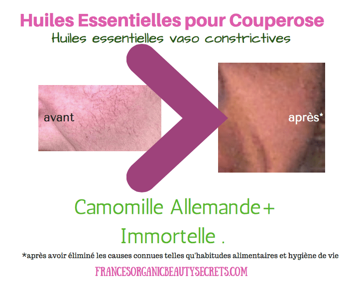 aromatherapie-contre-couperose