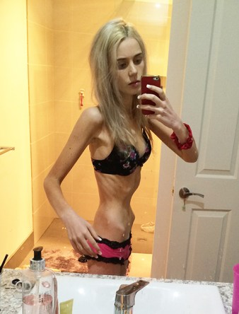 Hours From Death: Anorexia Sufferer's Incredible Recovery