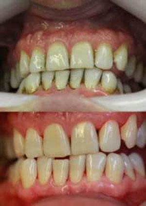 PAIN-FREE AIR POLISH WINNER ANNOUNCED - Frazer Dental