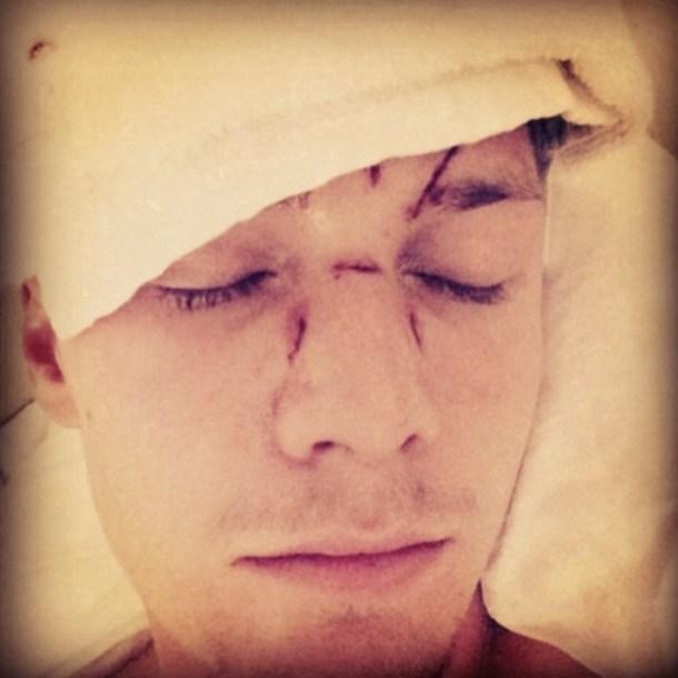 Barron Hilton Beat Up Miami